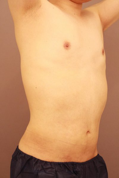 男性の上半身の脂肪吸引 半年経過
