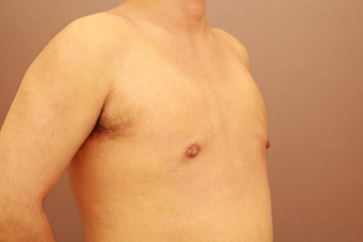 男性の女性化乳房の治療 3か月経過