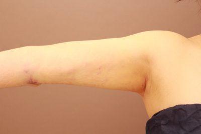 二の腕の脂肪吸引 翌日のダウンタイムの紹介