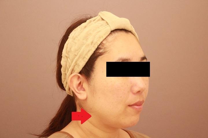 顔の脂肪吸引 特に顎下の脂肪がすっきりする事の大切さ