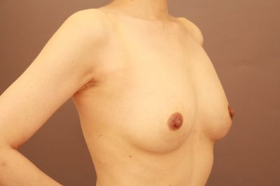 授乳後のコンデンスリッチ豊胸+乳首縮小 1か月経過