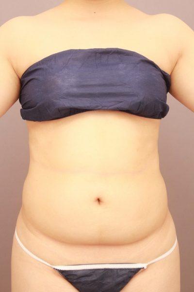 お腹の脂肪吸引 半年経過