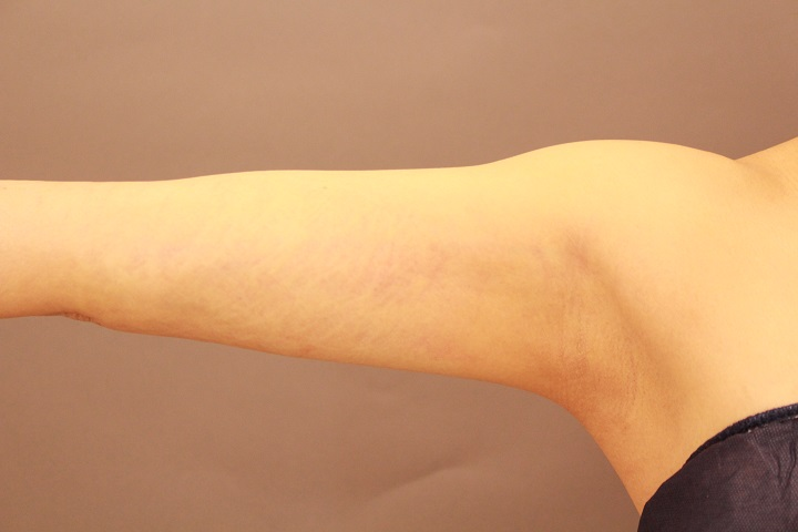 二の腕の脂肪吸引 翌日の経過