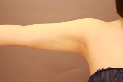 二の腕の脂肪吸引 1か月経過