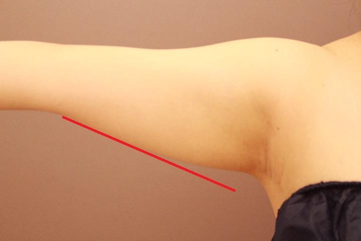 二の腕の脂肪吸引 半年経過