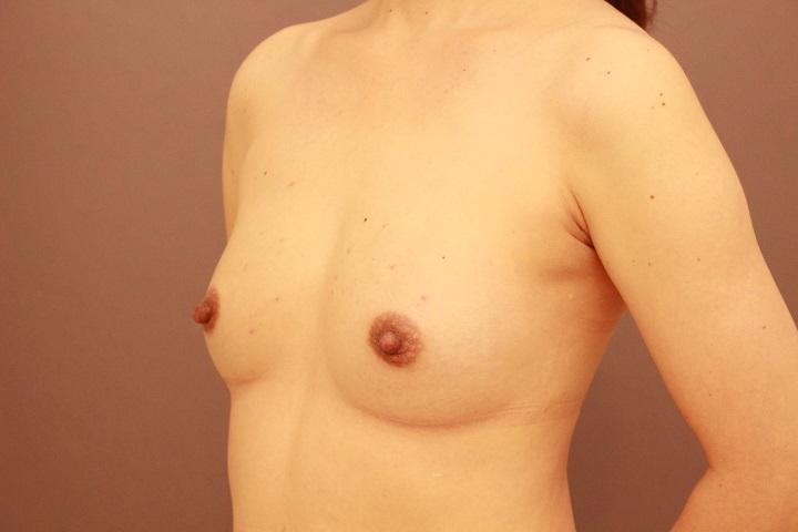 コンデンスリッチ豊胸+乳頭縮小  3か月経過