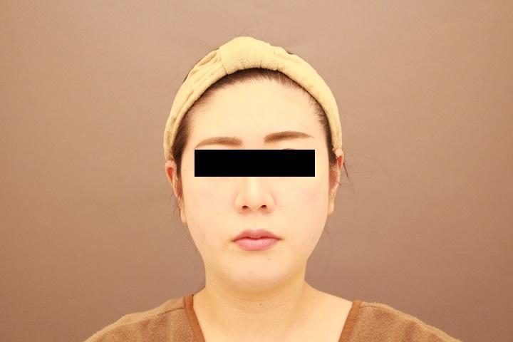 顔の脂肪吸引 1週間後のダウンタイム中の状態