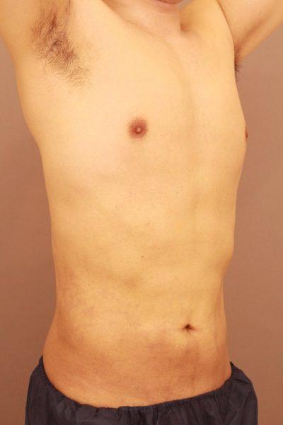 男性のお腹の脂肪吸引 半年経過