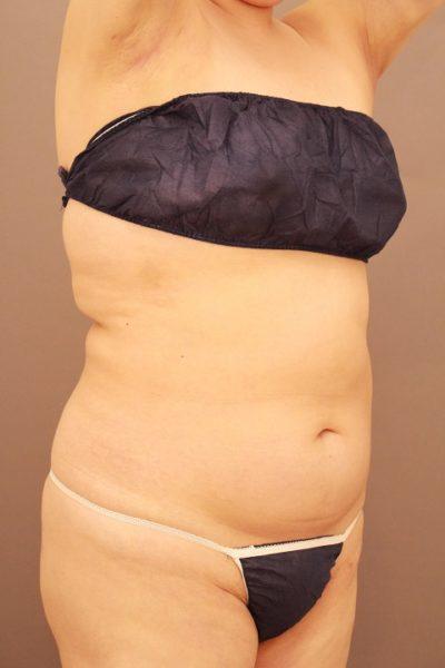上半身の脂肪吸引 1か月経過