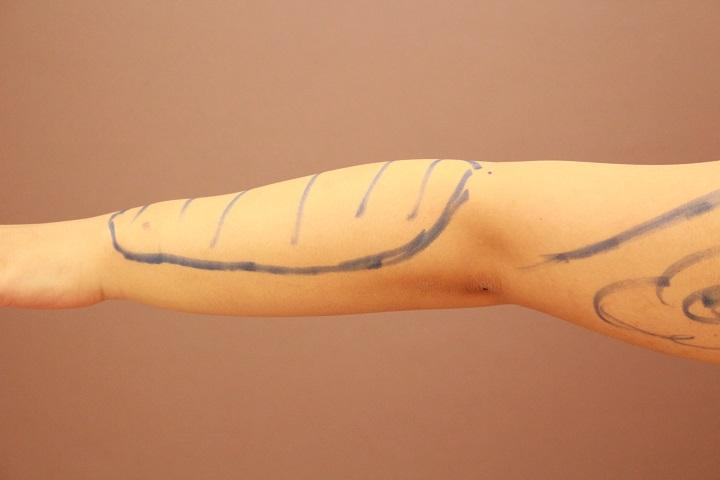 前腕の脂肪吸引が地味に人気があります・・・・