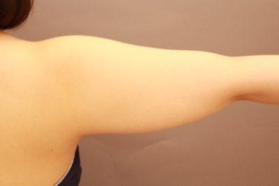 二の腕の脂肪吸引 3か月経過