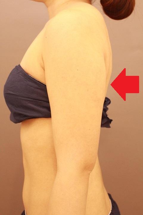 二の腕・肩の脂肪吸引 1か月経過