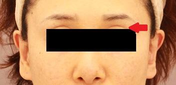 目の上のくぼみへの脂肪注入 半年経過