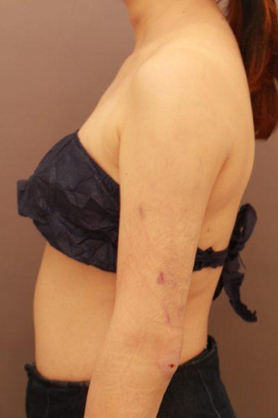 二の腕の脂肪吸引 翌日の内出血の様子