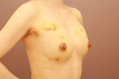 コンデンスリッチ豊胸 1週間後の内出血の状態~3か月経過