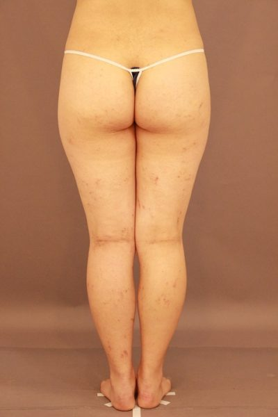 太ももの脂肪吸引 1か月経過