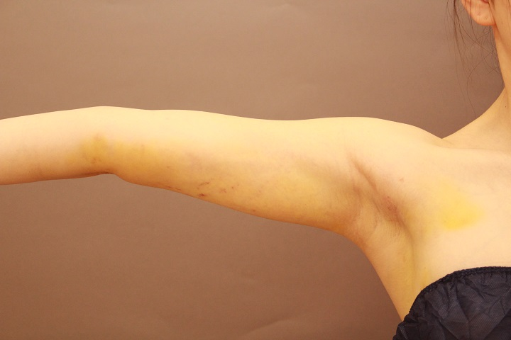 二の腕の脂肪吸引 1週間後の内出血の状態