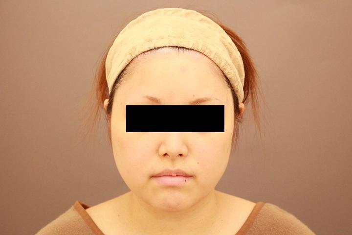 顔の脂肪吸引 半年後経過