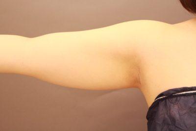 二の腕の脂肪吸引 まとめ