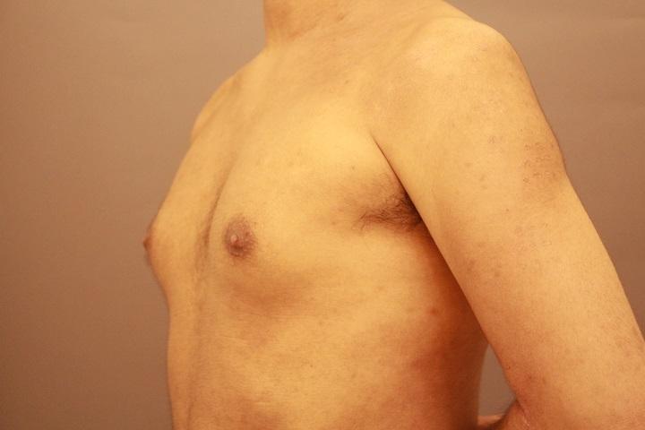 女性化乳房の手術