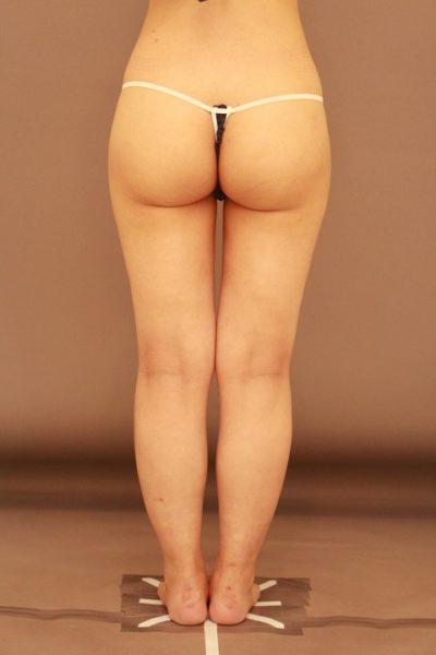 太ももの脂肪吸引でお尻の形が変わる!