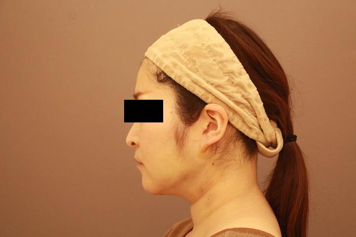 頬・顎下の脂肪吸引