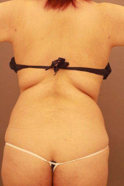 背中の脂肪吸引 翌日の経過