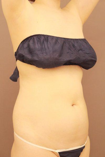 お腹の脂肪吸引 1か月経過