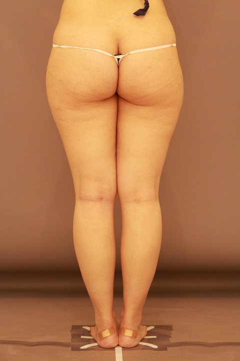 下半身の脂肪吸引