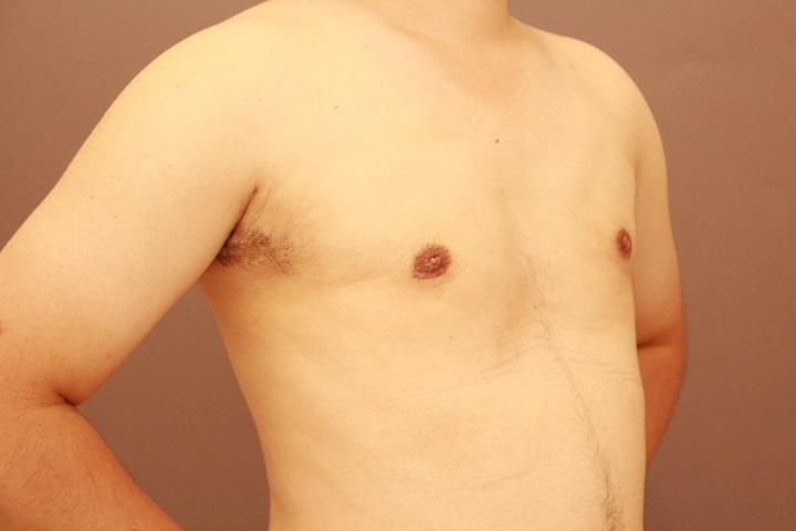 女性化乳房 術後1カ月経過