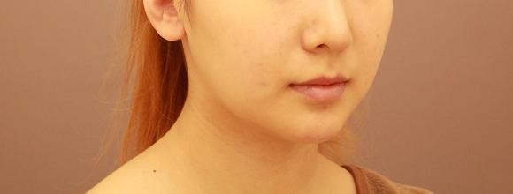 顎下・頬の脂肪吸引