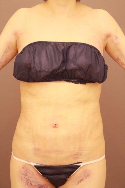 お腹の脂肪吸引 翌日縫合をするとここまで楽に出来ます。
