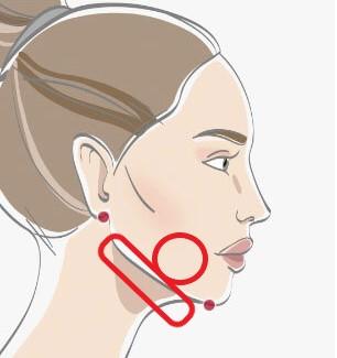 顔の脂肪吸引のダウンタイム