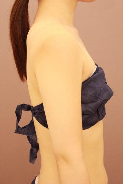 二の腕・肩  ベイザー脂肪吸引 半年経過