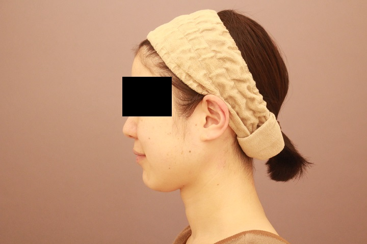 顎下の脂肪吸引