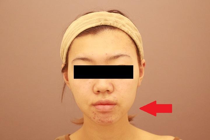顔の脂肪吸引 半年後