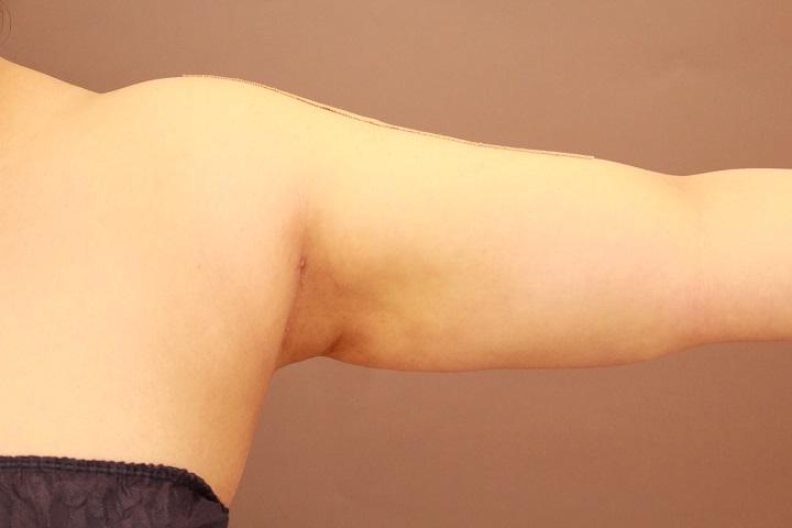 二の腕・肩の脂肪吸引 術後1カ月