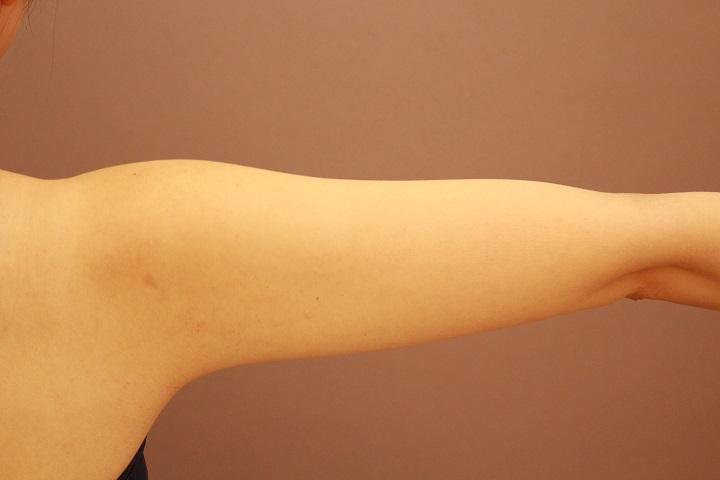 二の腕・肩の脂肪吸引 3カ月後