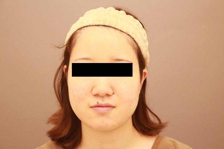顔の脂肪吸引 3か月後