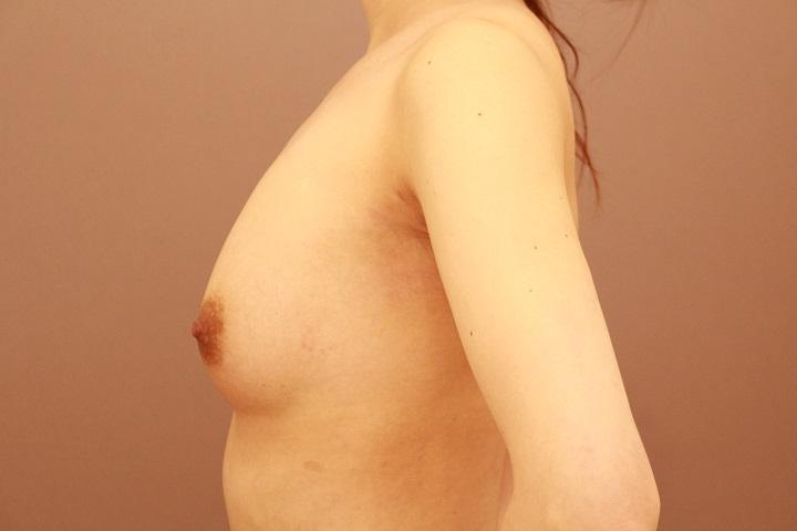 コンデンスリッチ豊胸 術後2か月の経過