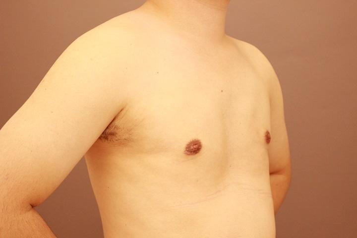 女性化乳房 術後3カ月の経過