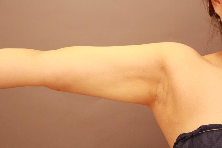 二の腕・肩の脂肪吸引
