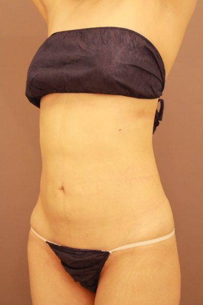 お腹の脂肪吸引 3か月経過