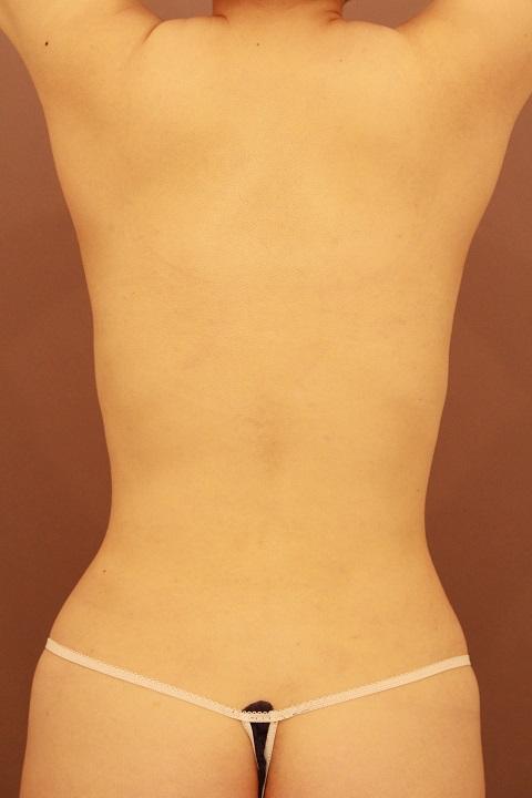 お腹・腰の脂肪吸引 術後3カ月の経過