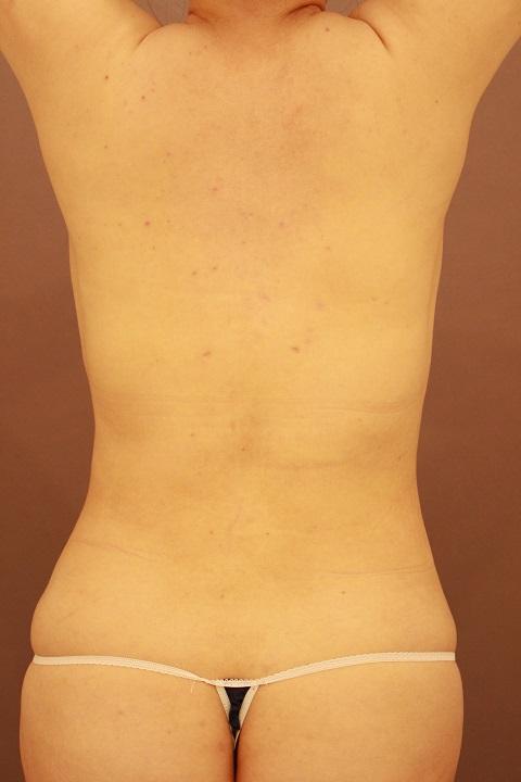 背中・腰の脂肪吸引 術後3カ月の経過