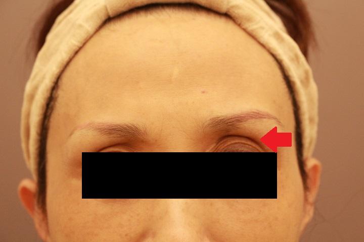 目の上の凹み 脂肪注入 4か月経過