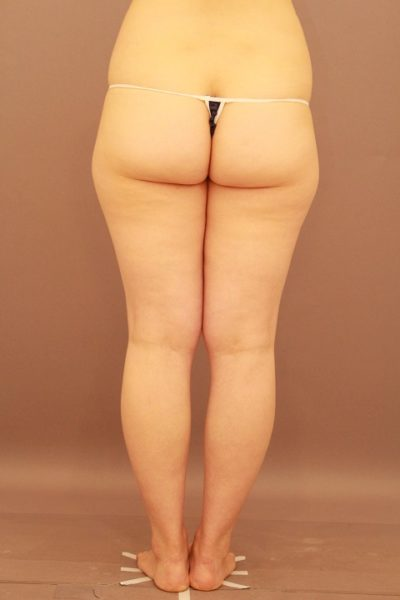 太ももの脂肪吸引 1年後経過