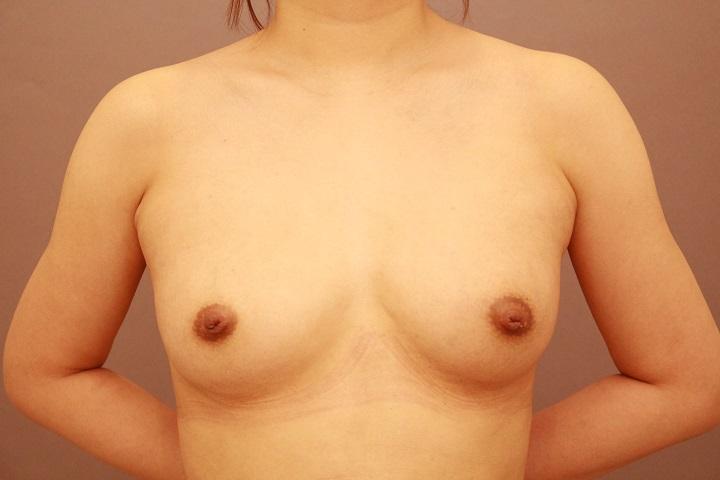 コンデンスリッチ豊胸 術後3カ月の経過