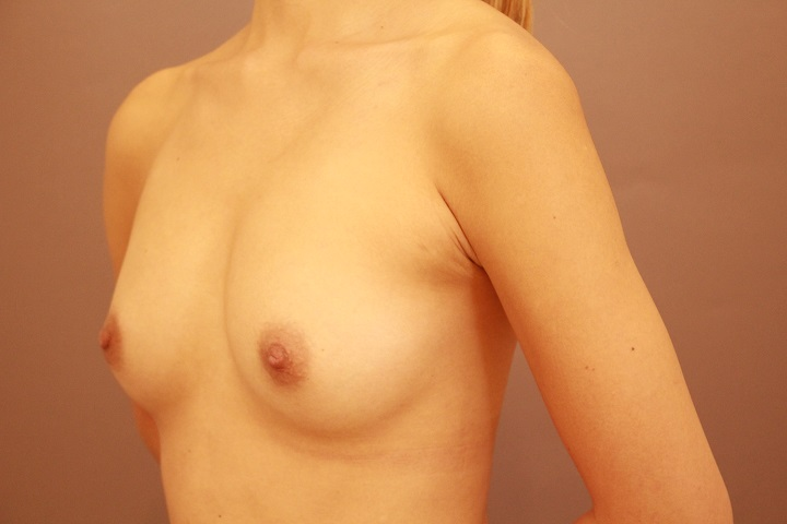 コンデンスリッチ豊胸 術後1カ月の経過