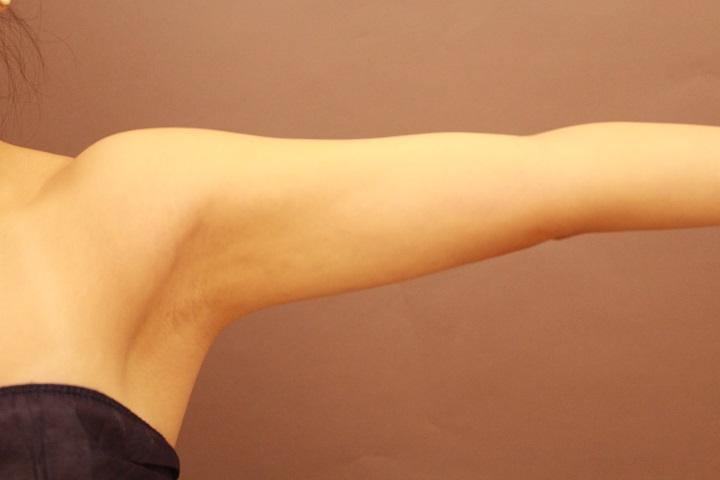 二の腕・肩の脂肪吸引 術後1カ月の経過